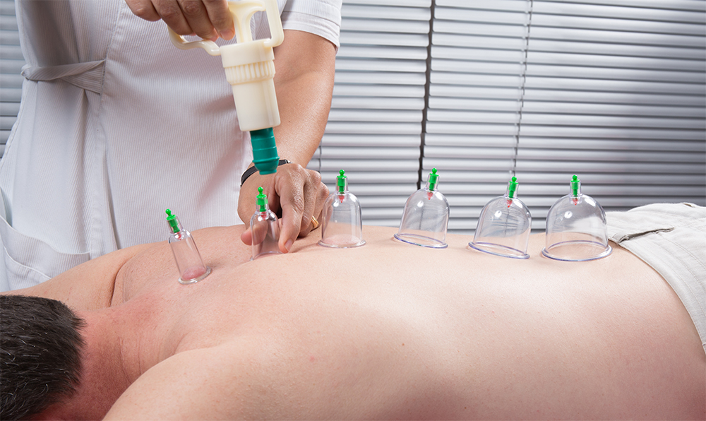 cupping_3-small_dry
